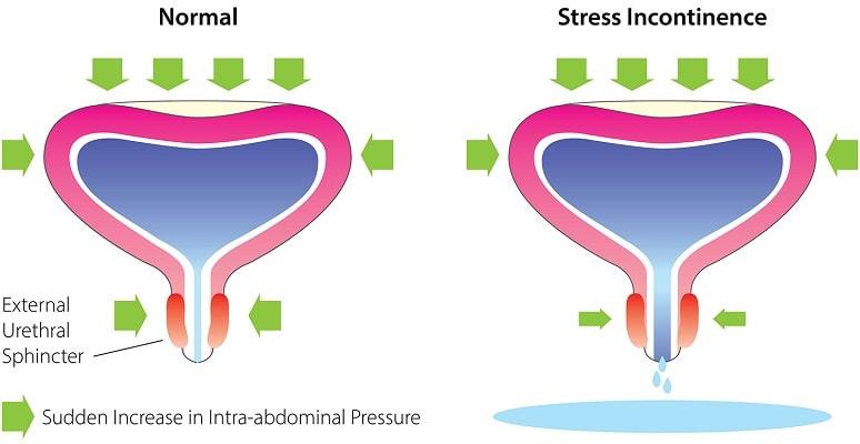 Стрессовое недержание мочи лечение