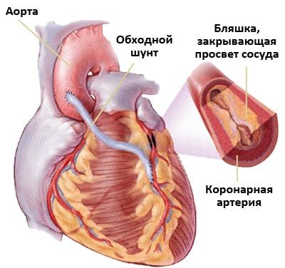 Как возникает стенокардия